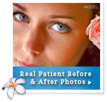 Before & After Photos of Eyelid Surgery Patients