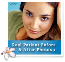 Before & After Photos of Facelift Patients