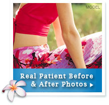 Before & After Photos of Tummy Tuck Patients