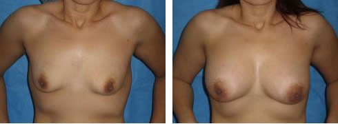 Breast Augmentation Case Number: 520