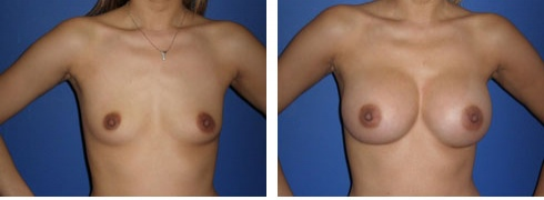 Breast Augmentation Case Number: 51