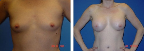 Breast Augmentation Case Number: 52