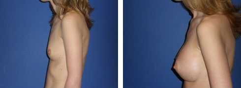 Breast Augmentation Case Number: 54