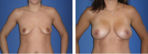 Breast Augmentation Case Number: 55