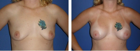Breast Augmentation Case Number: 56