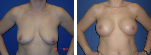 Breast Augmentation Case Number: 57