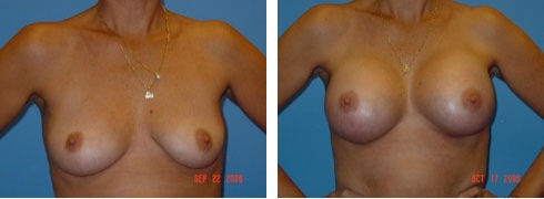 Breast Augmentation Case Number: 60