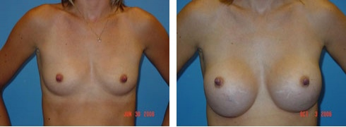 Breast Augmentation Case Number: 62