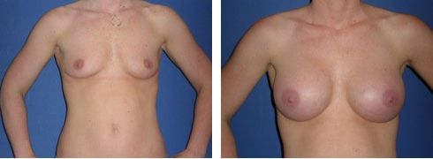Breast Augmentation Case Number: 42
