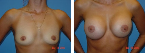Breast Augmentation Case Number: 63