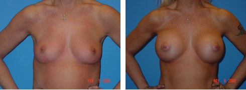 Breast Augmentation Case Number: 47