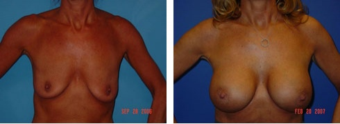 Breast Augmentation Case Number: 49