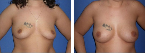 Breast Augmentation Case Number: 50