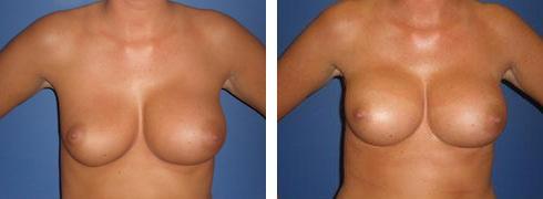 Breast Implant Exchange Case Number: 375