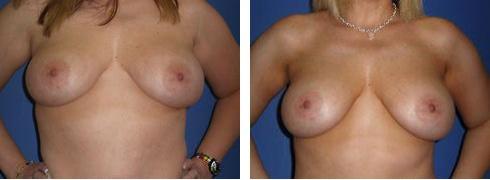 Breast Implant Exchange Case Number: 451