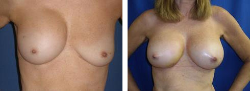 Breast Implant Exchange Case Number: 490
