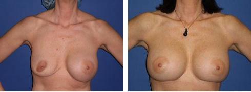 Breast Implant Exchange Case Number: 493