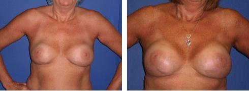 Breast Implant Exchange Case Number: 495