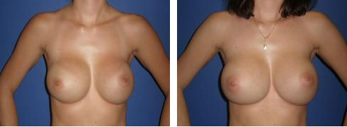 Breast Implant Exchange Case Number: 379