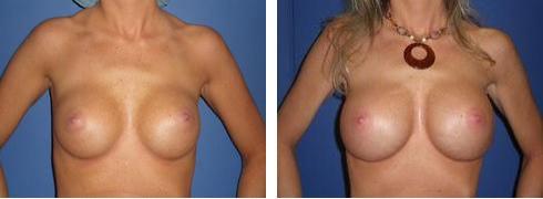 Breast Implant Exchange Case Number: 381
