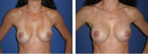Breast Implant Exchange Case Number: 390