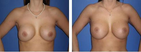 Breast Implant Exchange Case Number: 391