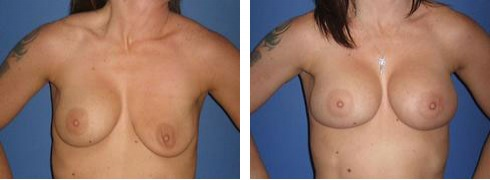 Breast Implant Exchange Case Number: 393