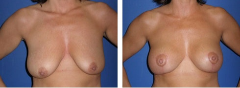 Breast Lift with Augmentation Case Number: 211