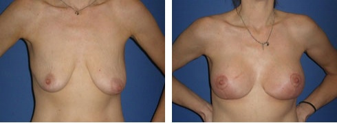 Breast Lift with Augmentation Case Number: 232