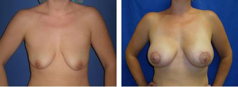 Breast Lift with Augmentation Case Number: 272