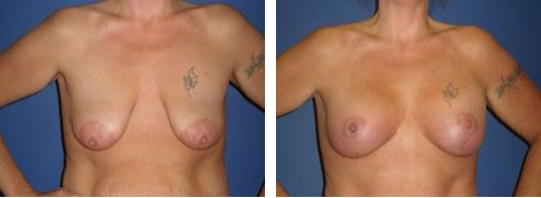 Breast Lift with Augmentation Case Number: 330