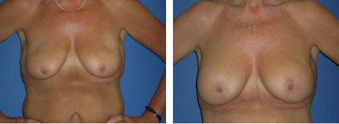 Breast Lift with Augmentation Case Number: 339