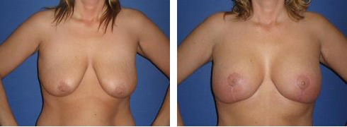 Breast Lift with Augmentation Case Number: 351