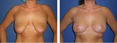 Breast Lift with Augmentation Case Number: 373