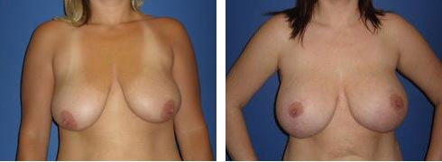 Breast Lift with Augmentation Case Number: 384