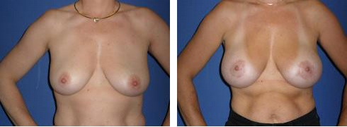 Breast Lift with Augmentation Case Number: 385
