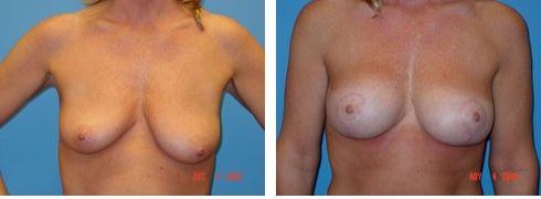 Breast Lift with Augmentation Case Number: 96