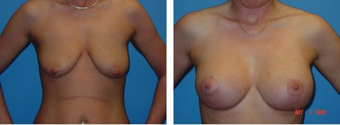 Breast Lift with Augmentation Case Number: 97