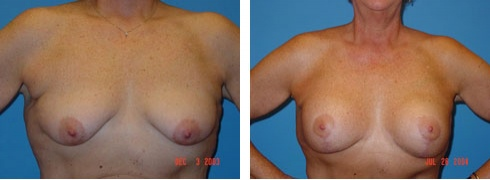 Breast Lift with Augmentation Case Number: 98
