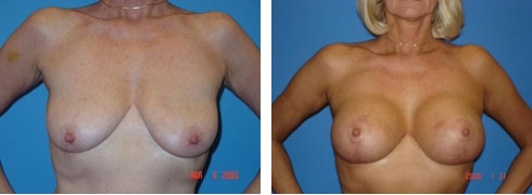 Breast Lift with Augmentation Case Number: 99