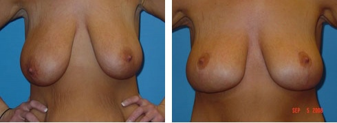 Breast Lift Case Number: 90
