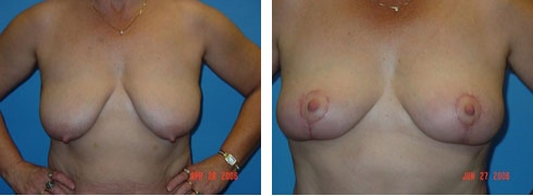 Breast Lift Case Number: 91