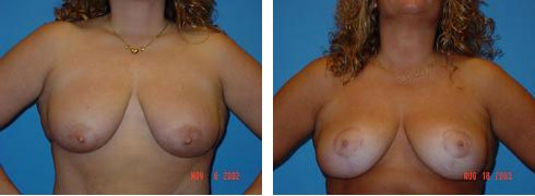 Breast Lift Case Number: 93