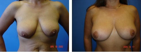 Breast Lift Case Number: 94