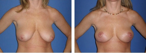 Breast Lift Case Number: 219