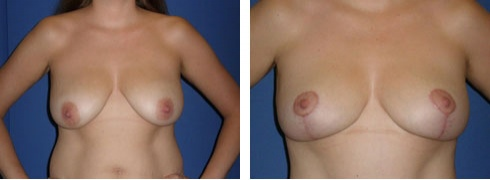 Breast Lift Case Number: 221