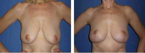 Breast Lift Case Number: 317