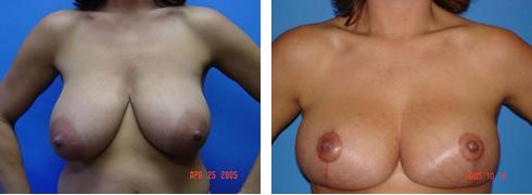 Breast Lift Case Number: 318
