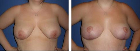 Breast Lift Case Number: 340