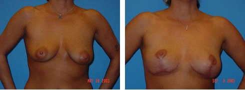 Breast Lift Case Number: 425